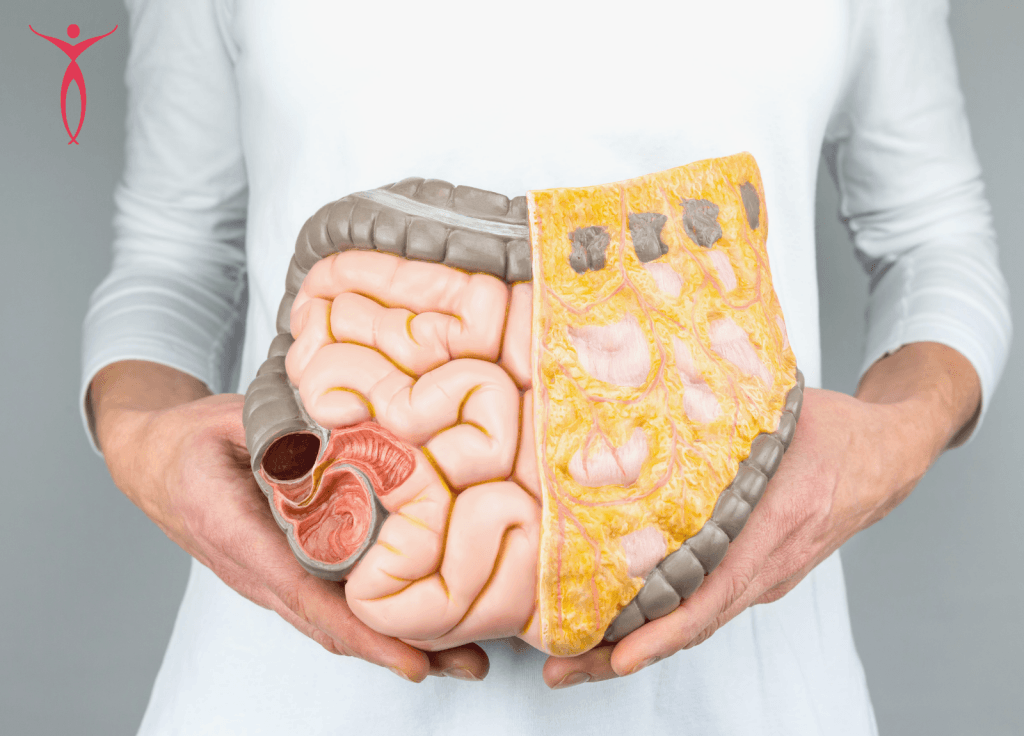 woman holding colon diagram healthy vs not healthy